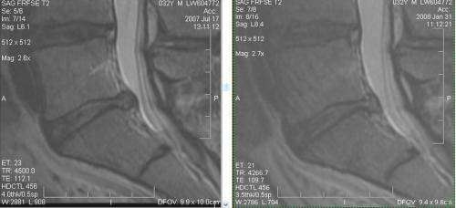 regenexx-lumbar-disc-info-patientonly-jpg1