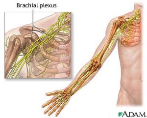 Colorado Stem Cell Therapy brachial plexus - Pain radiating down my arm after shoulder surgery