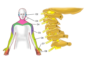 cervical readic - Pain radiating down my arm after shoulder surgery