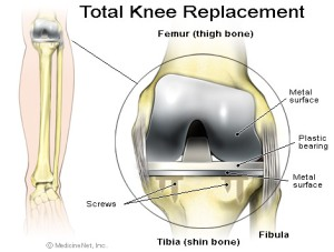 knee replacement - Recovery from knee replacement surgery
