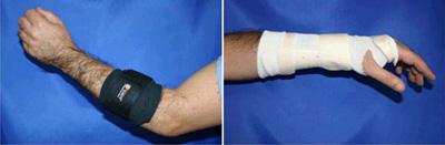 lateral-epicondyle-brace1