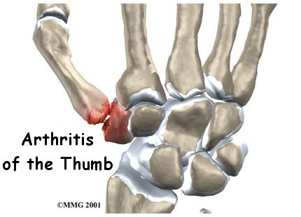 Arthritis of the Base of Thumb
