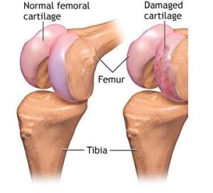 Normal and Damaged Knee Cartilage