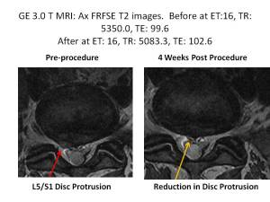 lonnies mri axial5 - Stem Cell Therapy for Lumbar Disc Protrusions