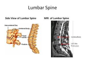 MRI of Lumbar Spine: Stem Cell Therapy