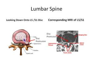 slide2 - MRI of Lumbar Spine: Stem Cell Therapy