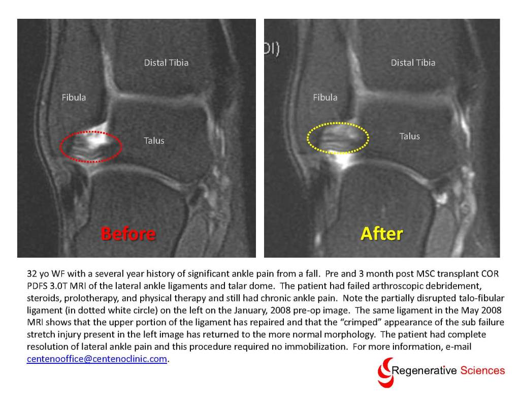 ankle mri1 - Structural Integrity:  The Importance of Ligaments