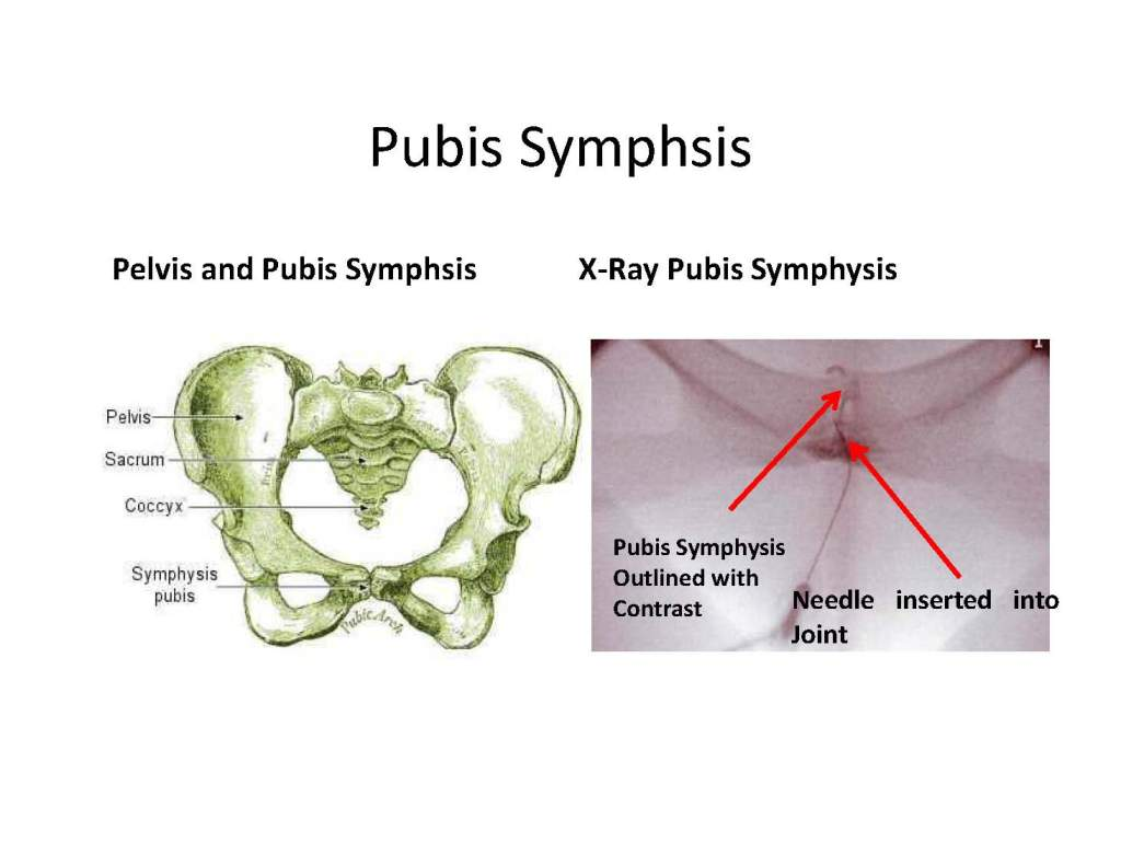 Prolotherapy of Pubis Symphysis ADF