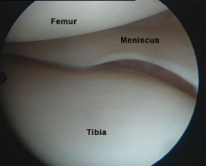 Colorado Stem Cell Therapy arthroscopic view of knee - Nip and Tuck of Meniscus:  Advancing The Degenerative Cascade