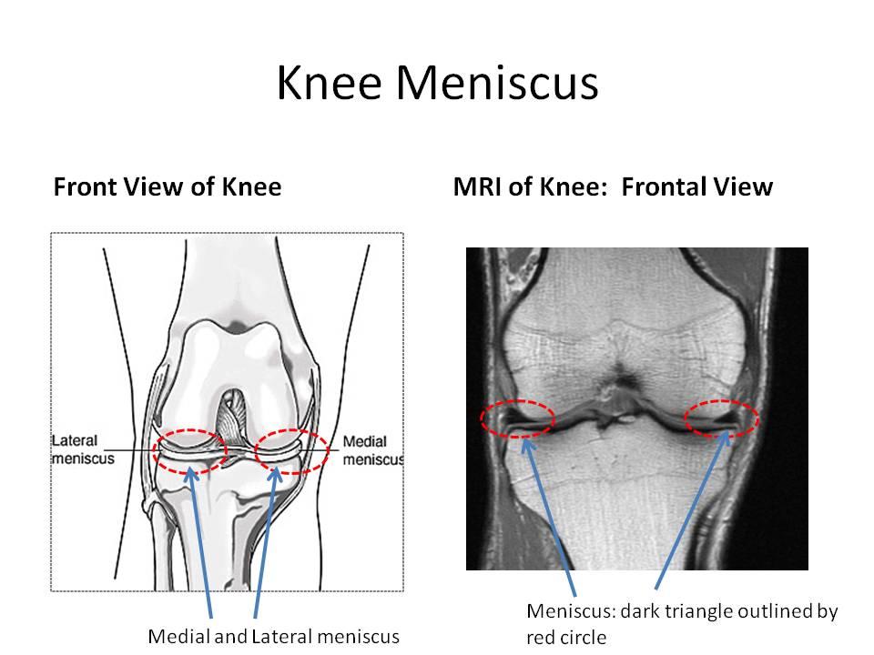 Knee Mensicus3