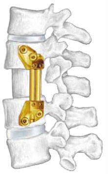 synes vertebral implant