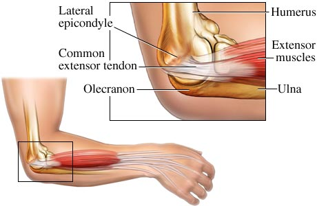 Tennis elbow physiology and causes san leandro chiropractic 510