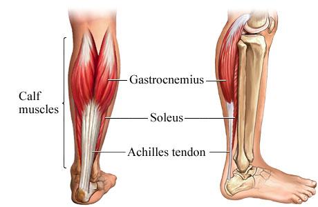 orthotics for achilles tendonitis. Achilles tendonitis, an