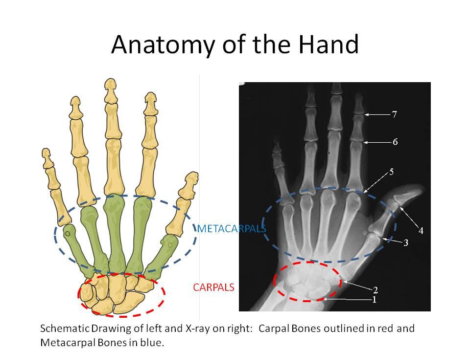 Thumb Pain: CMC Joint Arthritis | Stemcelldoc\'s Weblog