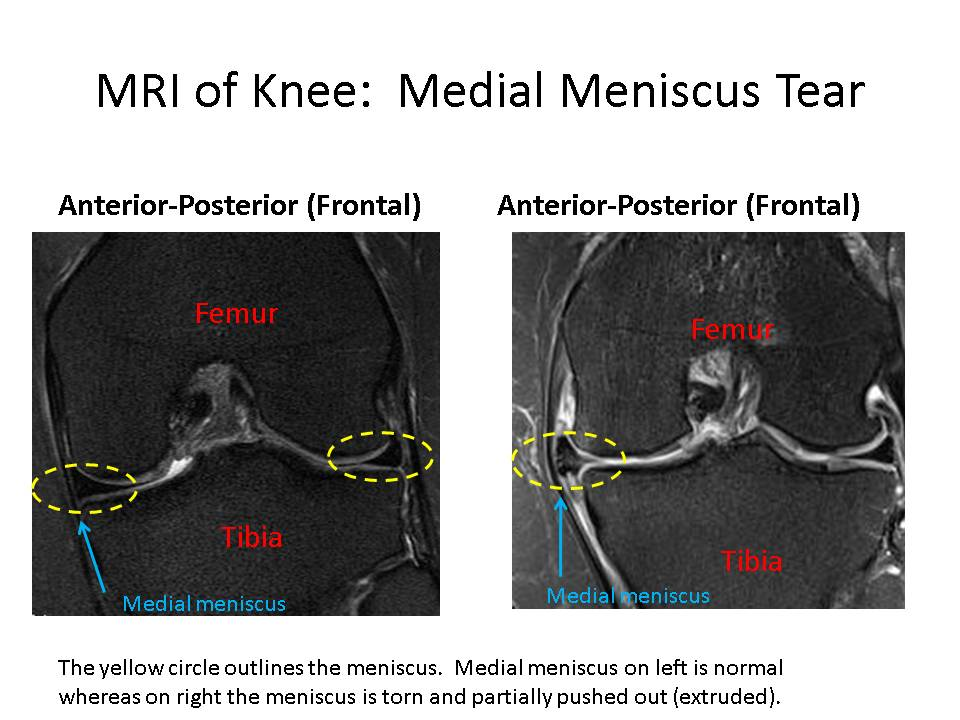 Meniscus Surgery Complications