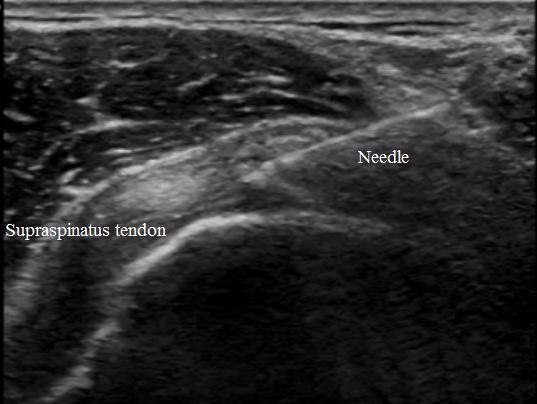 ultrasound and prolotherapy stemcelldocs weblog
