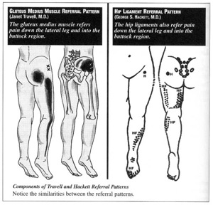 Buttock Pain Sacroillac Joint And Associated Ligaments