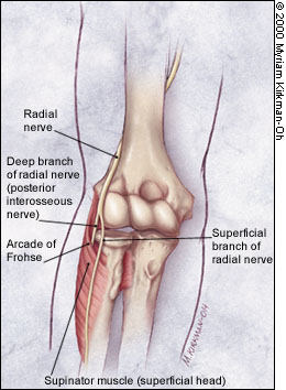 Lateral Elbow Pain: Posterior Interosseous Nerve Compression ...