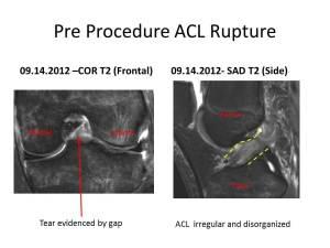 ACL Stem Cell Regeneration Pre 2