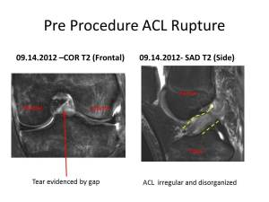 ACL Stem Cell Regeneration Pre 2