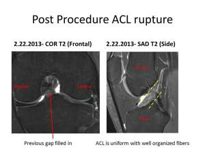 ACL Stem Cell Regeneration pre