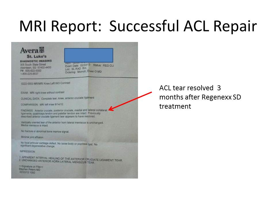 MRI Report ACL repair