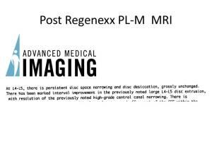 Lumbar DD RX MRI report 1