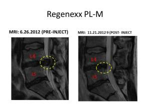 Lumbar DD RX PL-M 2012.sag