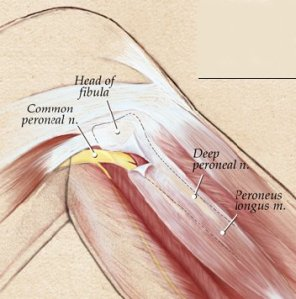 common_peroneal_nerve_entrapment