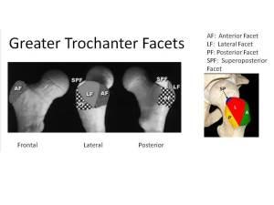 Trochanteric Facets