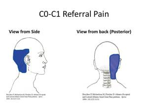 c0-c1-joint-referral-pain