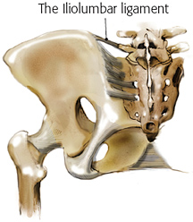 Iliolumbar ligament treatment