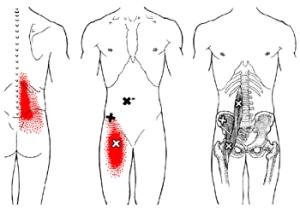 iliopsoas referral pain pattern