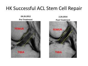 Keel Successful ACL Stem Sag